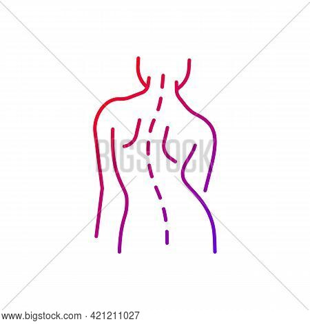 Scoliosis Gradient Linear Vector Icon. Sideways Curve. Uneven Hips And Shoulders. Pinched Nerves. Ba