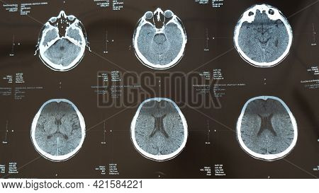 X-ray Of The Brain With A Head Injury, Stroke Disease In The Senior Chegovik. Magnetic Resonance Ima