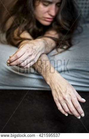Self Harm On Frustrated Disillusioned Sick Woman Lying On Bed With Heavy Self Inflicted Cuts And Sca