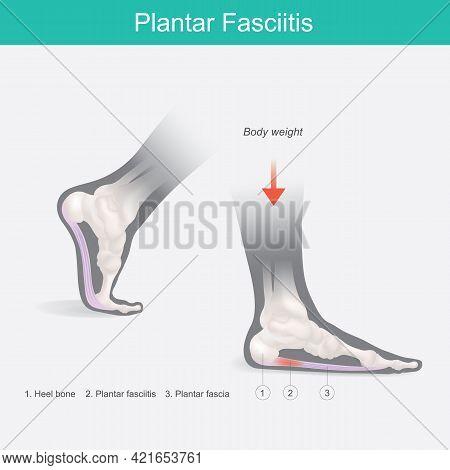 Plantar Fasciitis. Illustration Human Foot Anatomy Explain On Symptom Plantar Fasciitis.