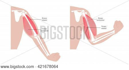 Contracted And Relaxed Biceps And Triceps Anatomical Poster. Human Muscular System And Skeleton Part