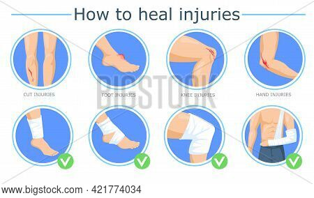 Healing Of Different Injuries Poster. Cartoon Vector Illustration. Methods Of Bandaging Foot, Knee,