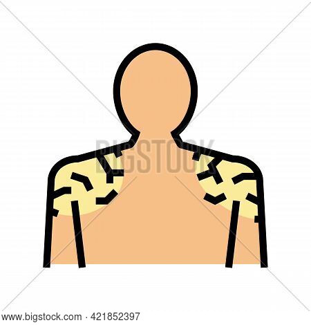 Shoulders Dry Skin Color Icon Vector. Shoulders Dry Skin Sign. Isolated Symbol Illustration