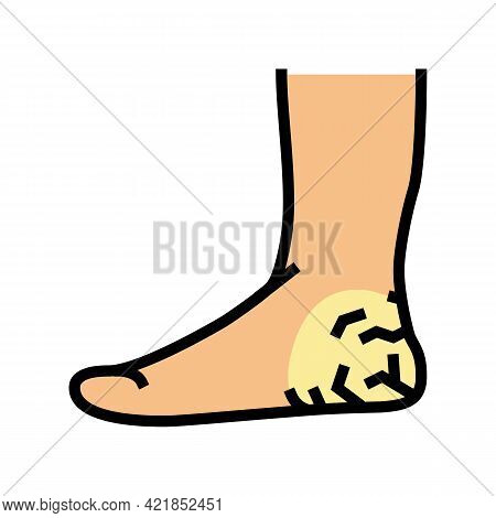 Heels Dry Skin Color Icon Vector. Heels Dry Skin Sign. Isolated Symbol Illustration
