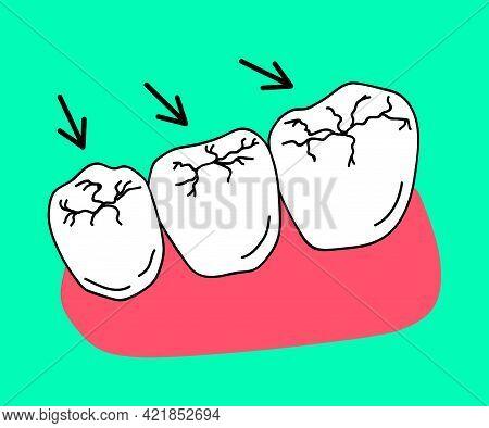 Caries On Molars. Destruction Of The Enamel Of Human Teeth. Dentistry. Cartoon. Vector Illustration.