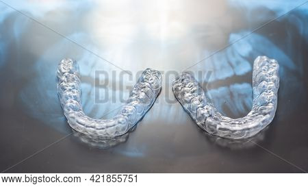 Transparent Bite Correction Trays And X-ray Of The Jaw. Orthodontist Equipment