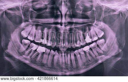 X-ray Of The Oral Cavity With Teeth. Panoramic Dental X-ray. Orthopantomogram.