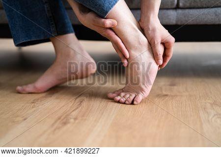 Woman Feet Callus And Injured Foot. Hurt Heel