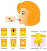 Formation of skin acne. Blackhead, Acne, Pustule. Stages of Acne on white background poster