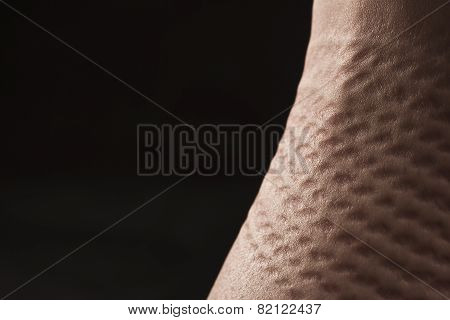 Deformation Skin After Bondage Of Submissive Woman / Bdsm Theme