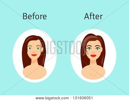 Plastic surgery before and after vector illustration. Beautiful girl after plastic surgery procedures in cartoon style.