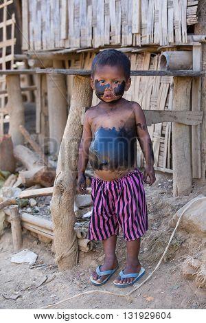 MRAUK-U MYANMAR - JANUARY 26 2016: Unidentified grimy child standing on the street
