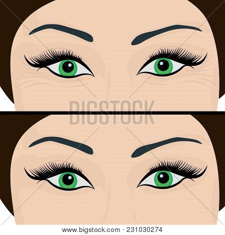 Wrinkles And Fine Lines Under Eyes To Remove. Before And After. Eyes Lifting Vector Illustration