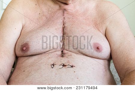 Scar From Open Heart Surgery Of Coronary Artery Disease, Where The Sternum Was Cut In Two, And The R