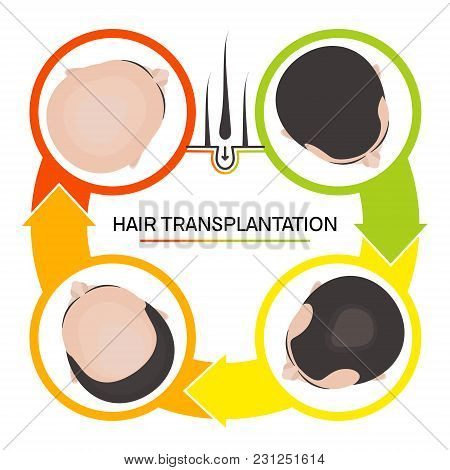 Hair Transplantation Surgery 4 Steps Infographics. Patient Before And After The Procedure. Male Hair