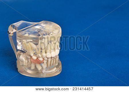 Human Jaw Or Teeth Orthodontic Dental Model With Implants, Dental Braces