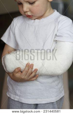 The Boy Hurts, He Keeps His Broken Hand In Plaster