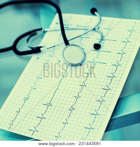 Stethoscope And Electrocardiogram On The Table From The Therapist.the Photo Is A Blank Space For You