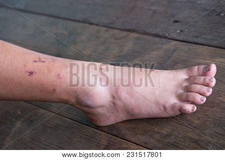 Wound Leg, Diabetic Foot Syndrome.