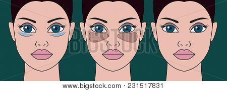 Patch Under Eyes Of Women. Girl With Mask From Swelling Of Eyebags. Vector Illustration