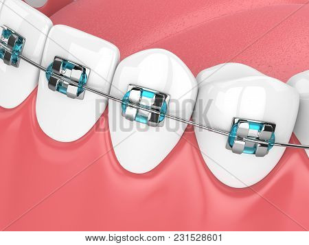 3D Render Of Jaw With Teeth And Orthodontic Braces
