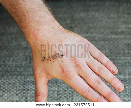 Hands In Dark Suture Wound On Hand. Pain Of Accident Concept .