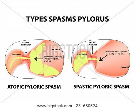 Types Of Spasms Of The Pylorus. Pylorospasm. Spastic And Atonic. Pyloric Sphincter Of The Stomach. I