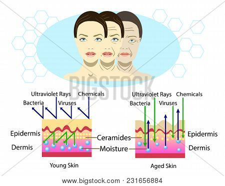Effect Of Environment On The Skin, Three Types Of Face, Vector Illustration And Diagram For Cosmetol