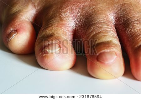 Fungal Infection Of The Area Between The Toes That Are Over From Wearing Shoes For A Long Time.
