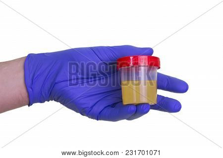 A Gloved Doctor Hand With The Urine Container For Medical Urine Test. A Photo Of Urine Specimen, Med