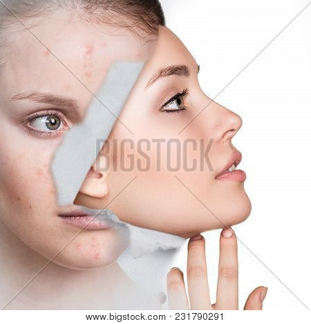Woman With New Healthy Skin Looking From Hole In Old Photo.