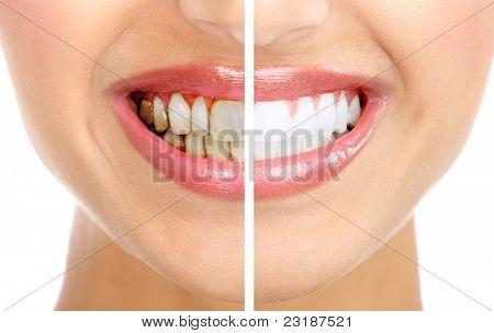 gesunde schönes Lächeln. Zahngesundheit. Zahnaufhellung.