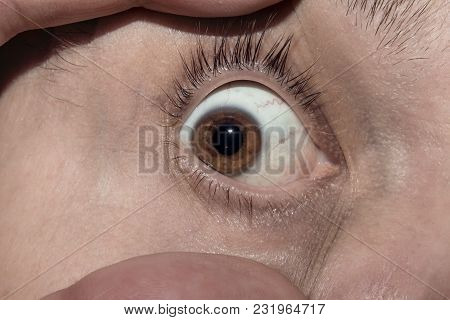 Brown Male Eye Wide Open With Two Fingers