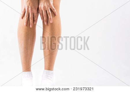 Woman Hand Scratching On Feet With White Background For Healthy Concept