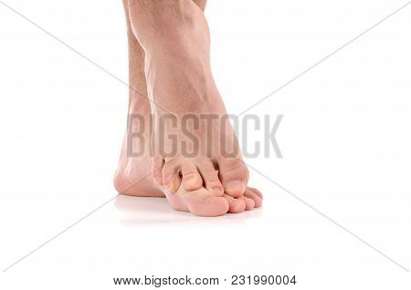Man Scratch The Itch.  Infection Of The Feet Caused By Fungus.