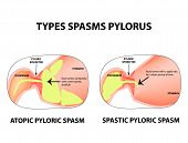 Types of spasms of the pylorus. Pylorospasm. Spastic and atonic. Pyloric sphincter of the stomach. Infographics. Vector image on isolated background. poster