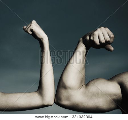 Muscular Arm Vs Weak Hand. Vs, Fight Hard. A Heavily Muscled Man Arm Wrestling A Puny Weak Man. Comp