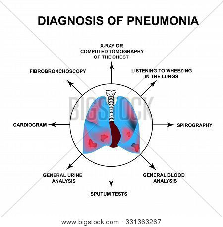Diagnosis Of Pneumonia. Human Respiratory Organs. World Pneumonia Day. The Anatomical Structure Of I