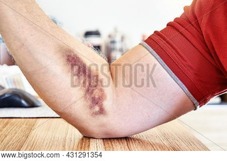 Young Man Shows Large Purple Bruise From Vein Injection On Forearm Sitting At Wooden Table In Light