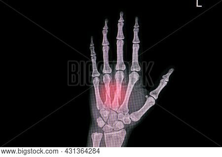 Hand Xray Showing Closed Fracture Third And Forth Metacarpal Bones.