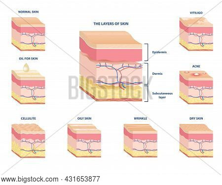 Collection Of Schemes Of Various Skin Types. Subcutaneous Tissue, Dermis And Epidermis. Skin With Ac
