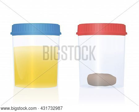 Urine And Fecal Sample In Specimen Cups With Blue And Red Cap For Urological Analysis And Medical Ex