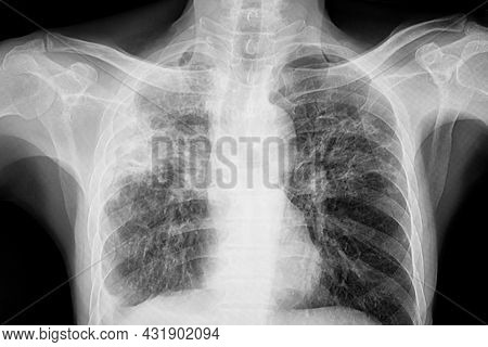 Chest Xray Of The Patient With Lungs Tuberculosis Showing Reticulonodular Opacity Involve Both Lungs