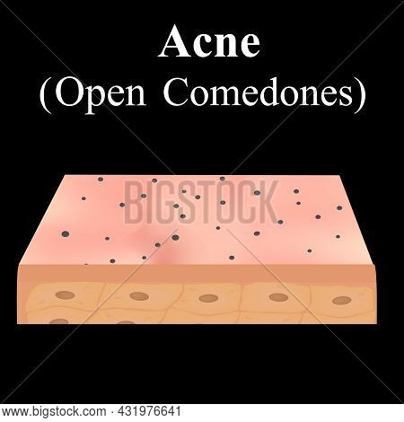 Open Comedones. Acne On The Skin. Dermatological And Cosmetic Diseases On The Skin Of The Face Acne.