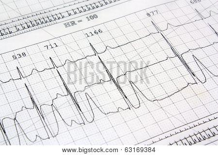 Electrocardiogram Ekg Heart