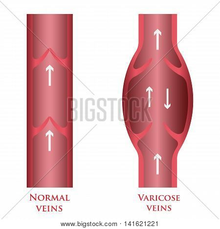 Vector illustration of a varicose vein and normal vein. poster