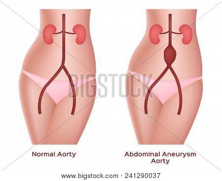 Abdominal Aneurysm Aorta Vector, Artery And Kidney