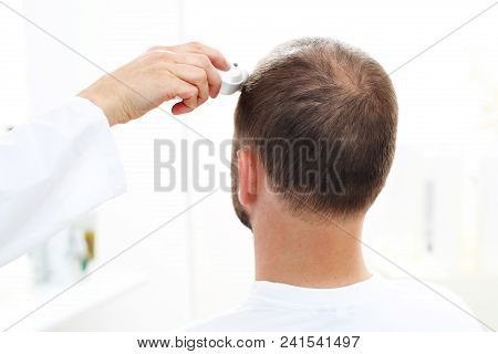 Trichological Examination. The Head Of A Man With Thinning Hair During The Examination Of The Scalp