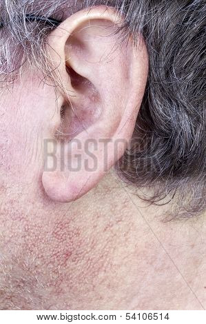 Hairy Man Ear