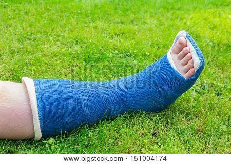 One blue gypsum leg of child on green grass